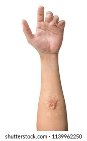 Man arm and hand with Keloid scar (Hypertrophic Scar) on skin after accident isolated on white background.