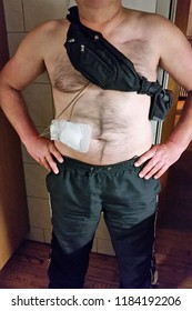 Man with auxiliary devices, artificial heart, LVAD, left or right ventricular assist device, controller batteries and power supply cable.