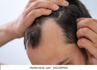 Man with bald spots suffering from hair loss. Treatment of hair problems