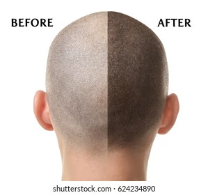 Man before and after hair loss treatment on white background