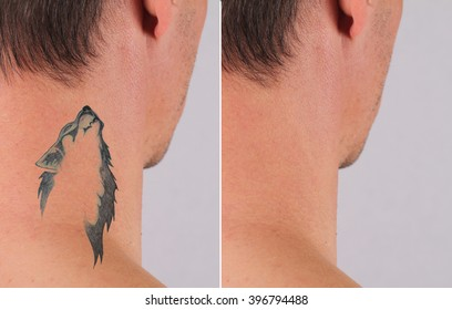 Man before and after laser tattoo removal treatment