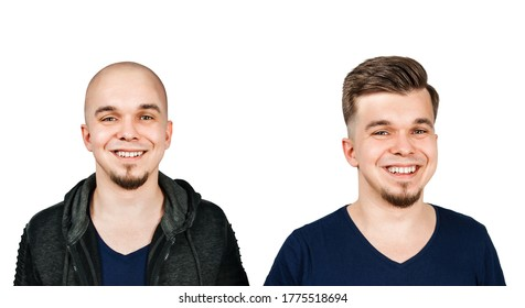 Man before and after transplant hair and alopecia. Isolated on white background.