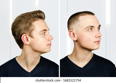 man before arter haircut with hair loss: bald and pompad.our, transplant and transformation in profile fade side.