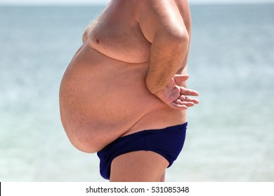 Man with belly. Obese male outdoors. Serious health problem. High risk of hernias.