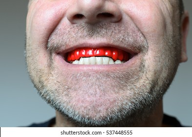 Man biting on a red bite plate in his mouth to protect his teeth at night from grinding caused by bruxism, close up view of his hand and the appliance