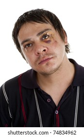 man with a black eye, isolated on white background