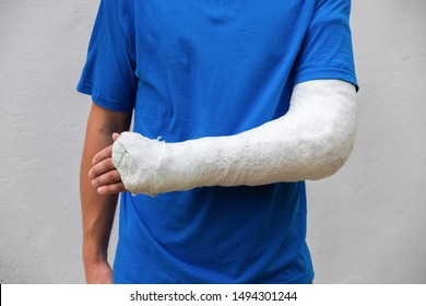 Man with broken arm wrapped medical cast plaster. Fiberglass cast covering the wrist, arm, elbow after sport accident, isolated on white