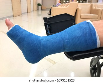 A man with broken leg from the accident in plaster cast (splint) is in orthopedic department at a hospital.