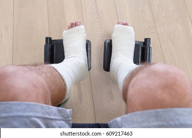 Man with broken legs in a cast in a wheelchair