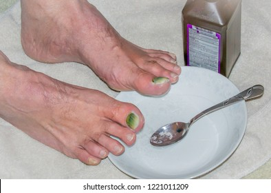 Man caring for toe nail injury-Medical photography. Big toe nails falling off as new ones grow in cleaning with peroxide