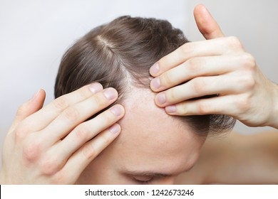 a man is checking his hair for loss. hair loss