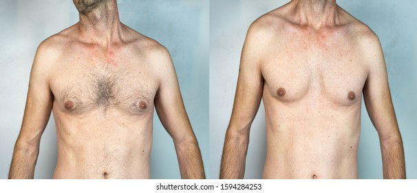 man with chest hair and shaved man in the same image, isolated on White background