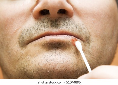 Man with  cold sore on his lips