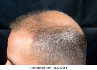 Man concerned by hair lossbaldness alopecia black background