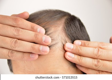 man controls hair loss with white background