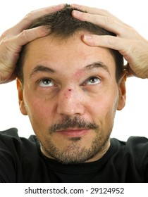 man with crooked, broken nose and black eye isolated on white