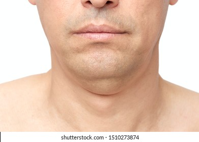Man a double fat chin, a problem with a hanging chin with white background