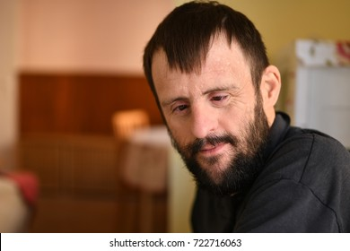 man with down syndrome
