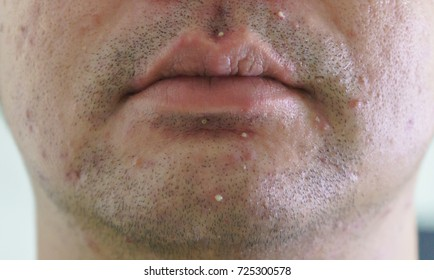Man Face Acne Around The Mouth