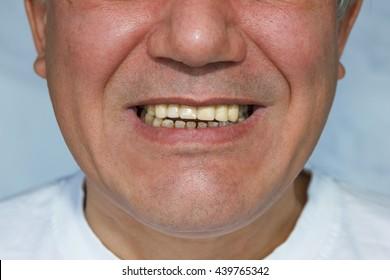 man with false front upper teeth (dental bridge)