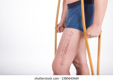 A man with a fracture of the femur is standing on crutches after surgery to install the plate. Photo in studio on a white background. Traumatology and orthopedics