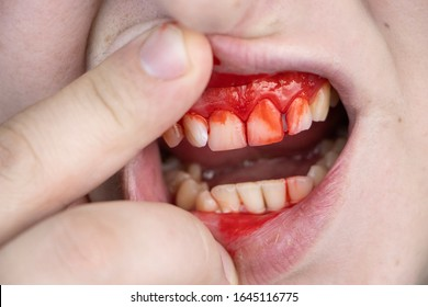 The man has blood on his teeth, severe bleeding of the gums after a blow to the jaw. Close-up of teeth after a fight or bruise