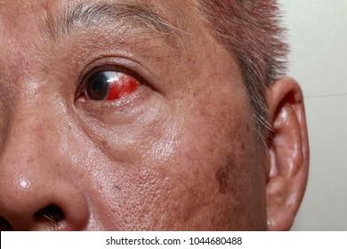 Man having ruptured blood vessels in his left eye