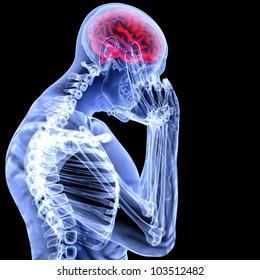 a man with a headache under x-ray.