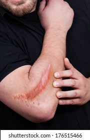 Man with heavy scar on his arm