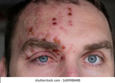 Man with Herpes Zoster (shingles) on the face, close up. Inflamed eyelid and red eye of a man suffering from herpes on the face. Purulent blisters on the face during Shingles