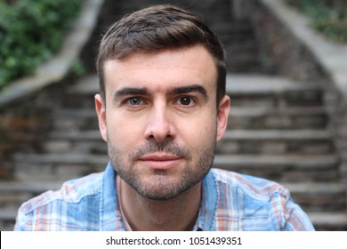 Man with heterochromia (two colored eyes)