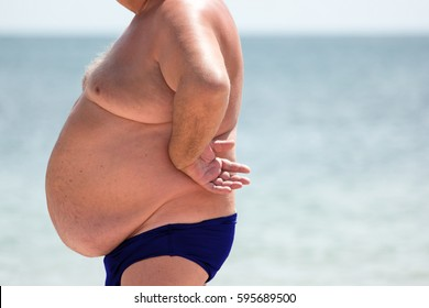Man with large belly. Obese male outdoor. Serious problem with health. Risk of hernias.