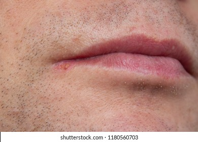 man lips virus infected herpes. closeup man face