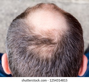 man with little hair