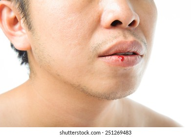 Man mouth injury and bleeding on white background.