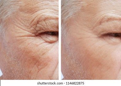 man of old wrinkles on his face before and after the procedures