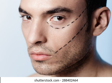 The man on the face is marked with guides before surgery filling wrinkles, crow's feet, injection of hyaluronic acid, plastic operation
