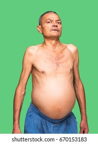 Man on a green background, ascites disease