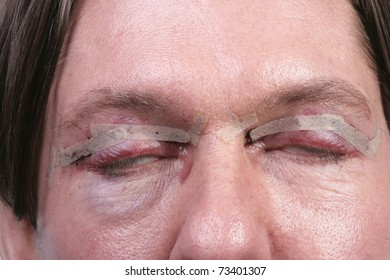 Man one day after plastic surgery on eyes