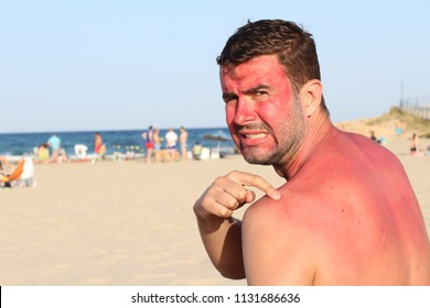 Man overexposing his skin to the sun