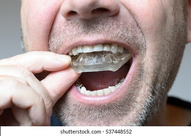 Man placing a bite plate in his mouth to protect his teeth at night from grinding caused by bruxism, close up view of his hand and the appliance