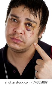 man pointing at his black eye, isolated on white back ground