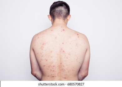 man posing in a photo Studio. thin body that's covered with moles and pimples. troubled skin. skin diseases. dressed in black jeans. white background. back acne
