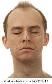 A man prepared for a cosmetic face surgery