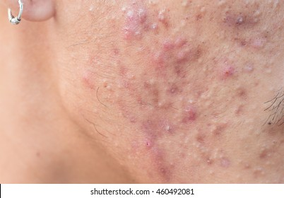 Man with problematic skin and scars from acne (scar)