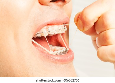 Man put on rubber orthodontic strings to braces
