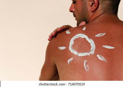 Man with reddened, itchy skin after sunburn. Skin care and protection from the sun's ultraviolet rays. Cream protection