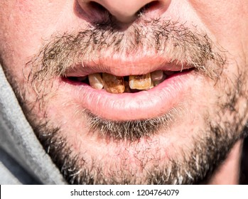 Man with rotten teeth