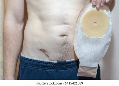 Man with scars on his stomach holds stoma colostomy bug. Chron's disease or colorectal cancer medicinal equipment cure health background concept.