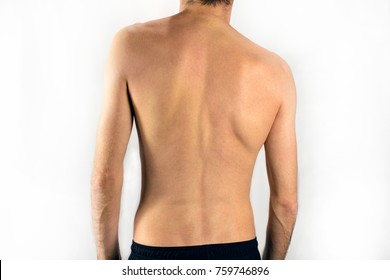 man with scoliosis have a spine that curves to the side. Back pain concept, selective focus, white background